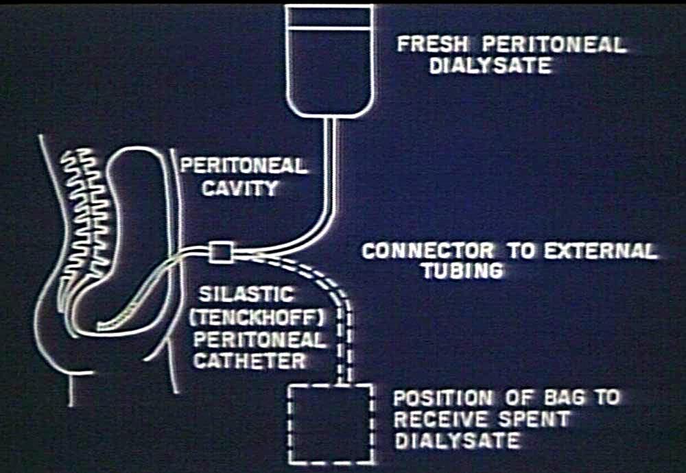PD dialysis