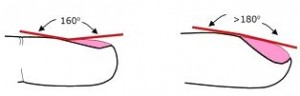 Left: Normal lovibond's angle (~160 degrees) Right: Clubbing (> or=180 degrees)