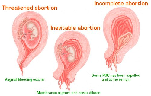 spontaneous abortion