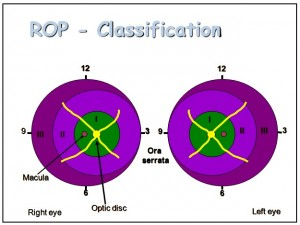 ROP Classification