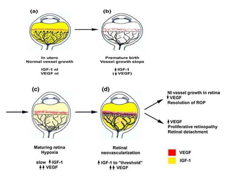 ROP pathogenesis
