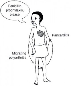Rheumaticfever 248x300 Acute Rheumatic Fever in Children