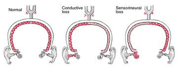 hearing loss Anatomy of the Ear and Types of Hearing Loss