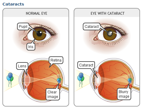 cataracts Cataract: A Brief Overview