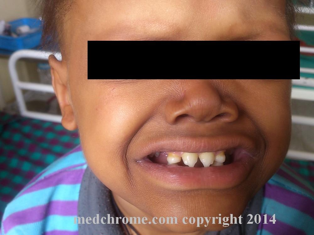 Medical Diagnosis: Medical Facial Diagnosis