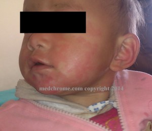 viral urticarial rash