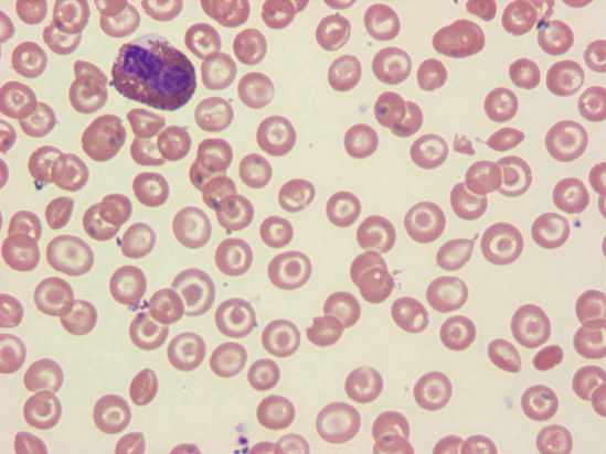 Thalassemia major