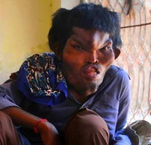 rp_Sain-Mumtaz-Proteus-syndrome-Giant-head-300x288.jpg