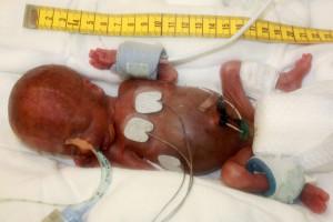 premature-baby-1200