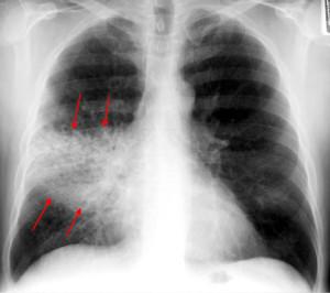 rml-pneumonia-pa1b