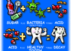 tooth decay acid