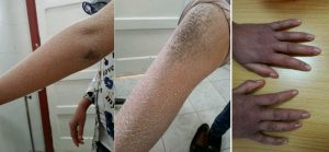 icthyosis clinical